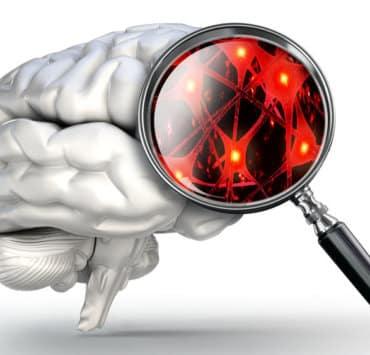 neurony