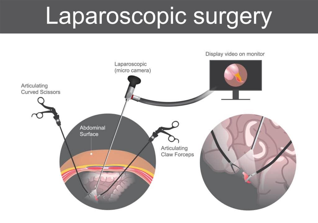 cholecystektomia