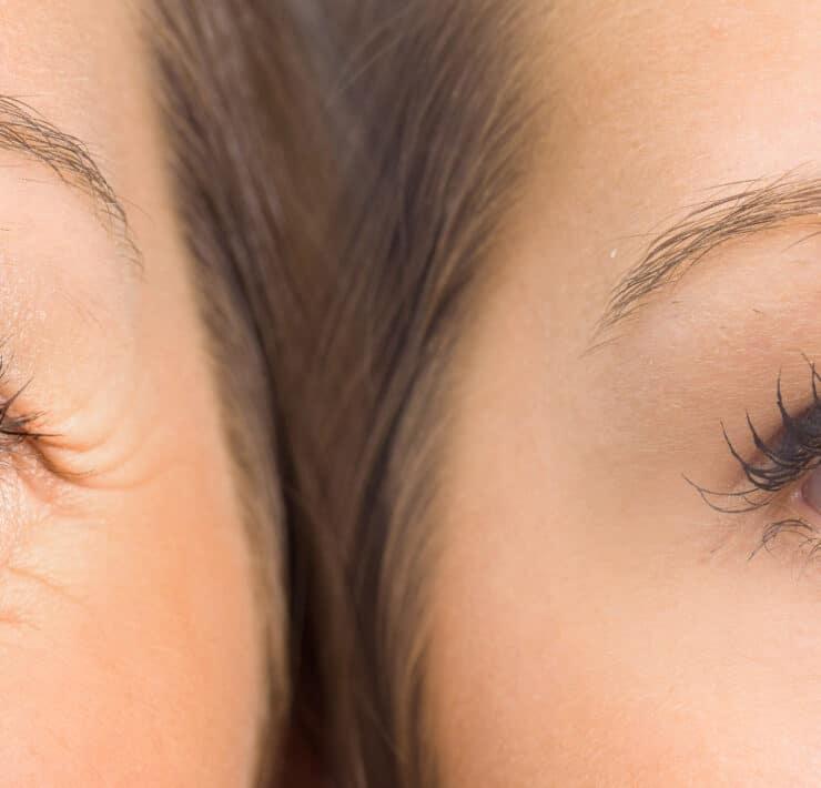 płyny metaboliczne gałka oczna